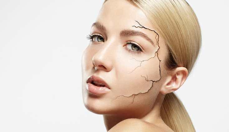 La quinoa también ayuda a evitar la sequedad de la piel