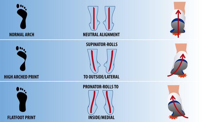 Gráfica que representa los tres tipos de pisada