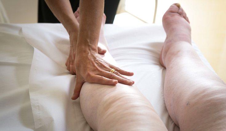 La retención de líquidos provoca edemas en diferentes partes del cuerpo