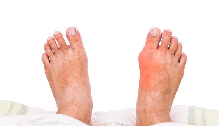 La gota produce el hinchazón de algunas extremidades del cuerpo como son los pies